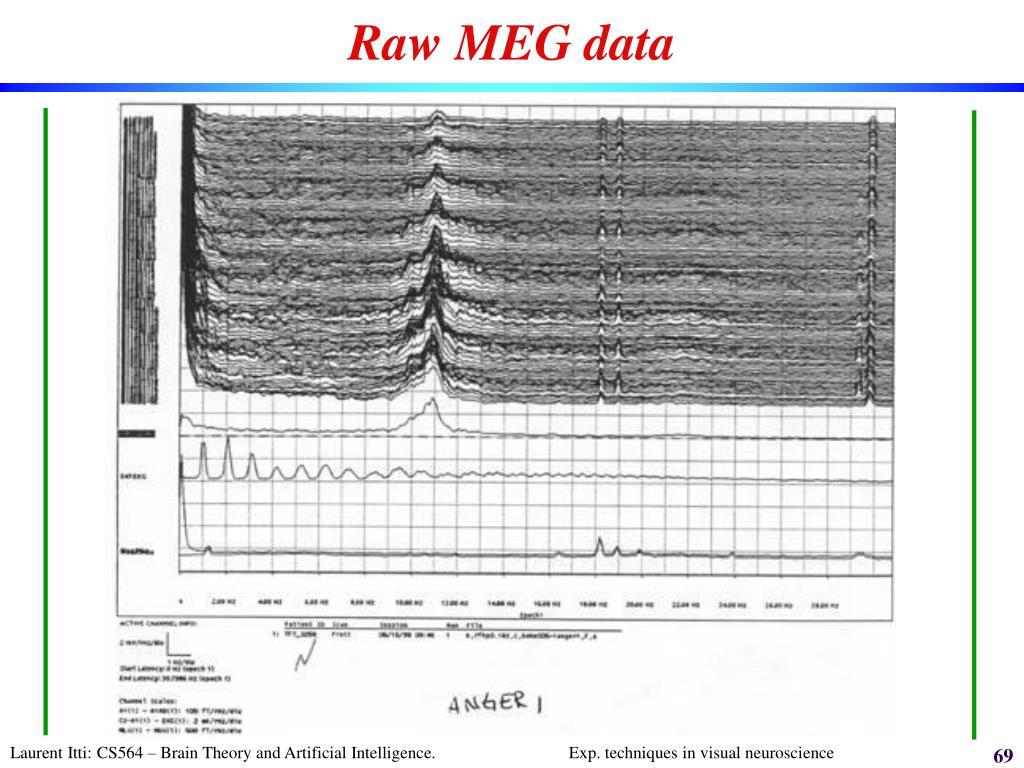 Raw MEG data