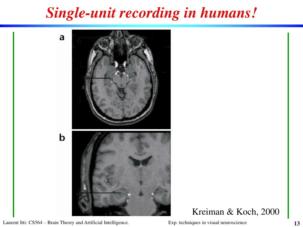 Single-unit recording in humans!