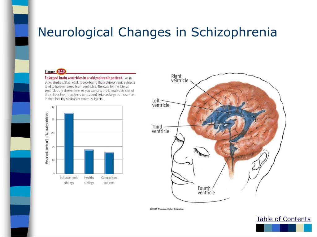 Neurological Changes in Schizophrenia