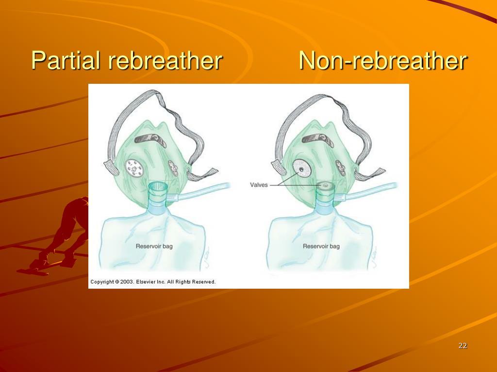 Partial rebreather           Non-rebreather