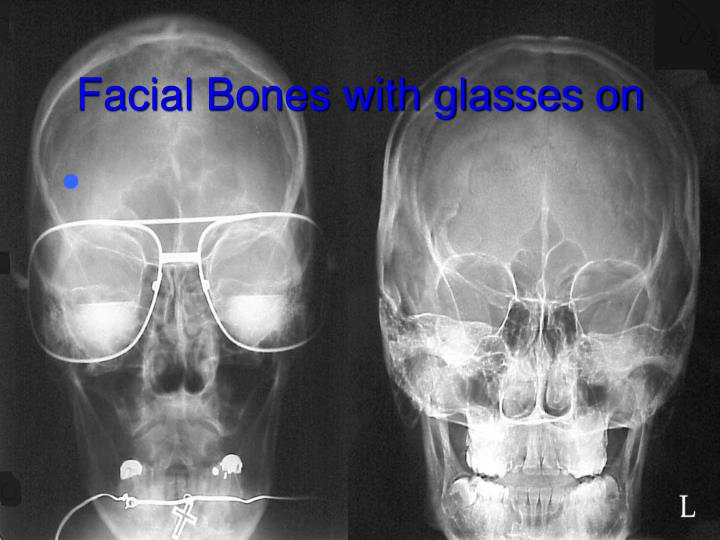 Facial Bones with glasses on