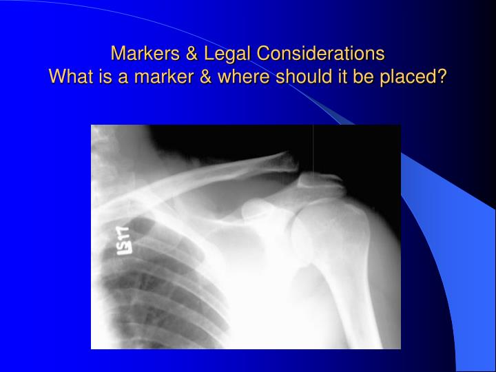 Markers & Legal Considerations