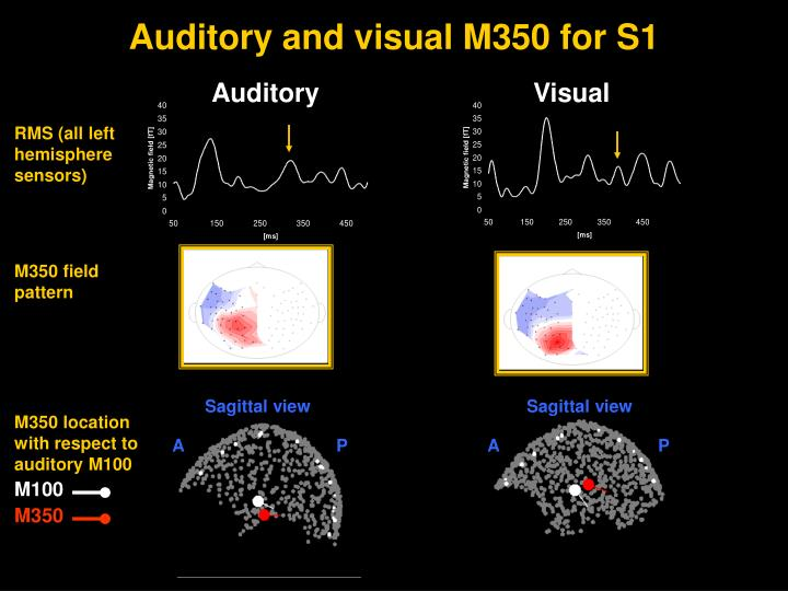 Auditory and visual M350 for S1