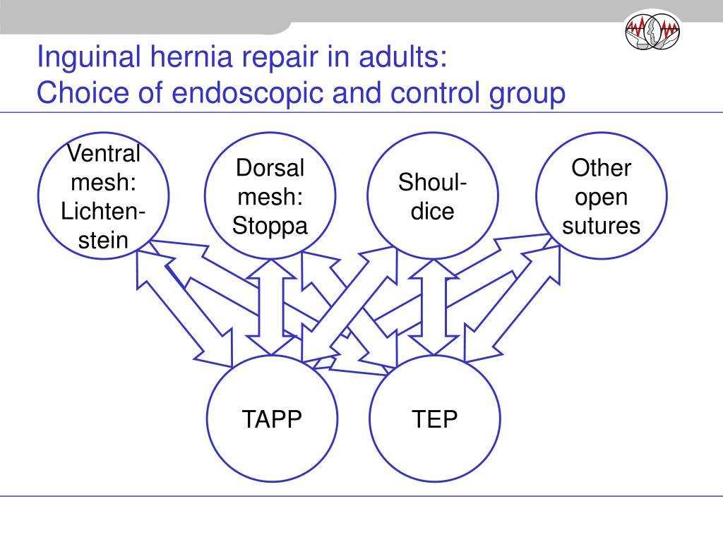 Inguinal hernia repair in adults: