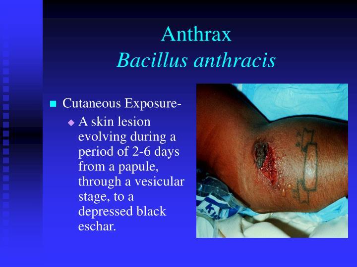 Cutaneous Exposure-