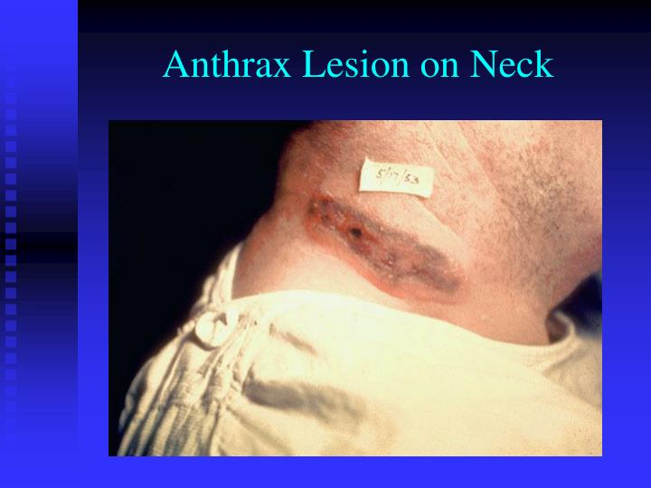 Anthrax Lesion on Neck