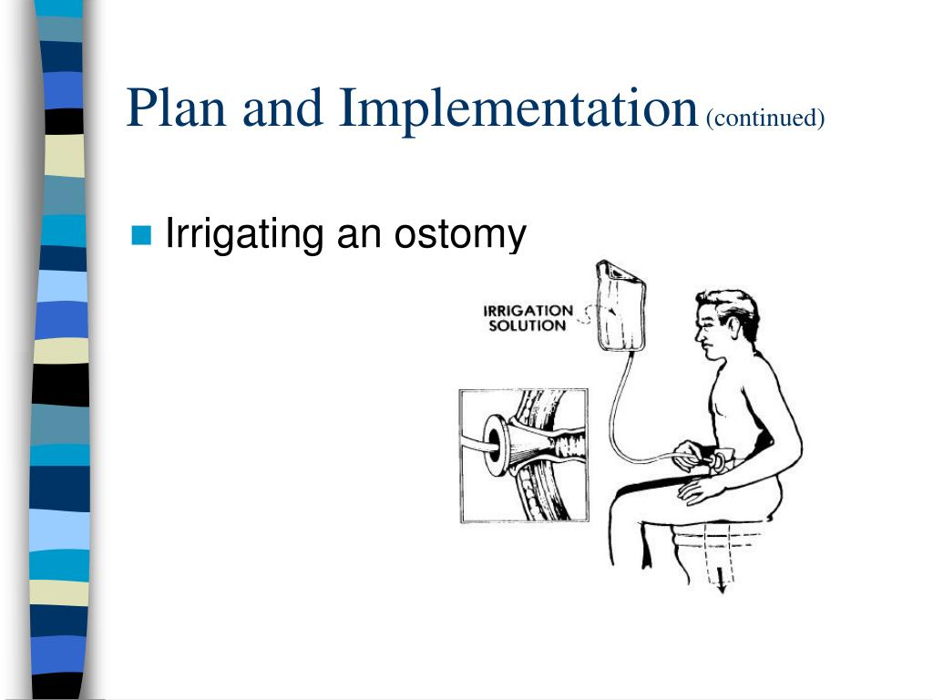 Ppt Bowel Elimination Powerpoint Presentation Id 271932