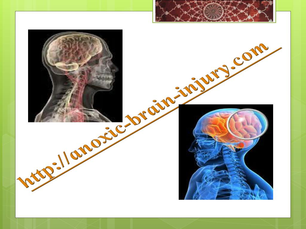 http://anoxic-brain-injury.com