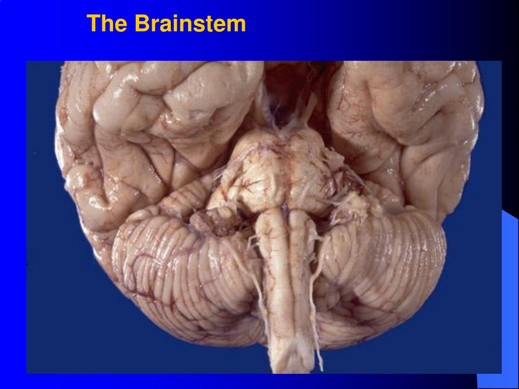 The Brainstem
