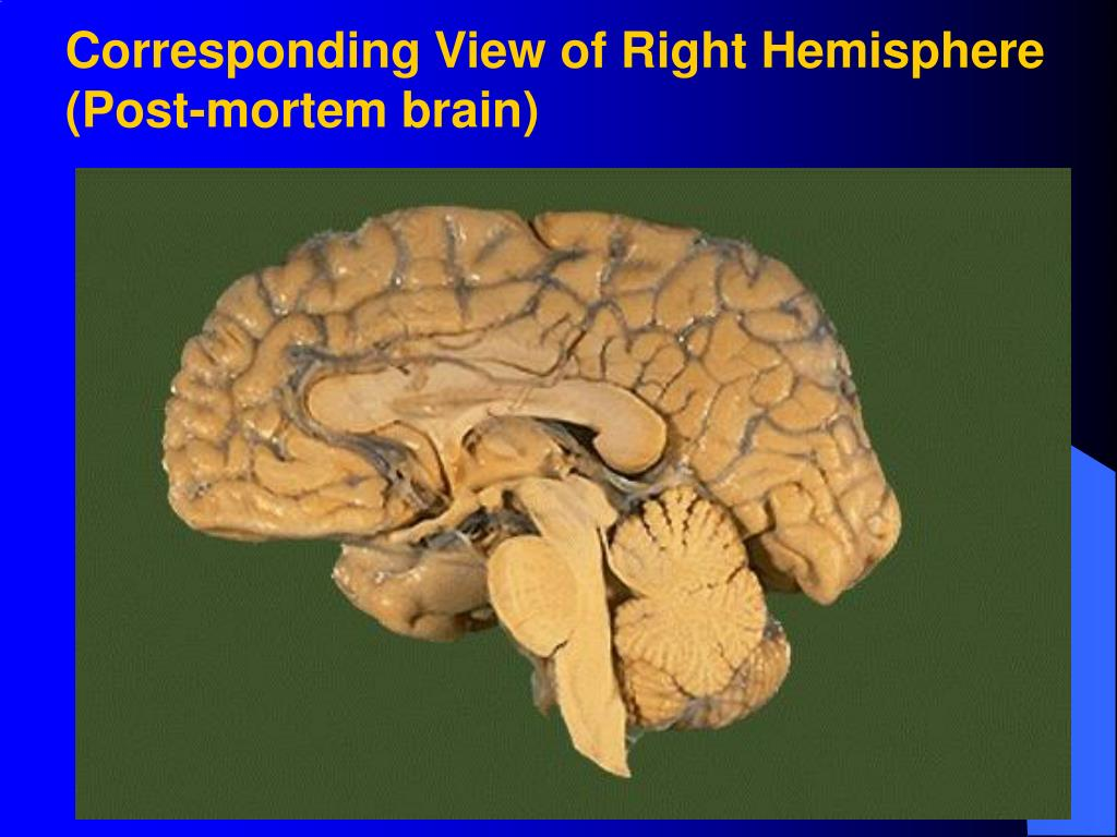 Corresponding View of Right Hemisphere