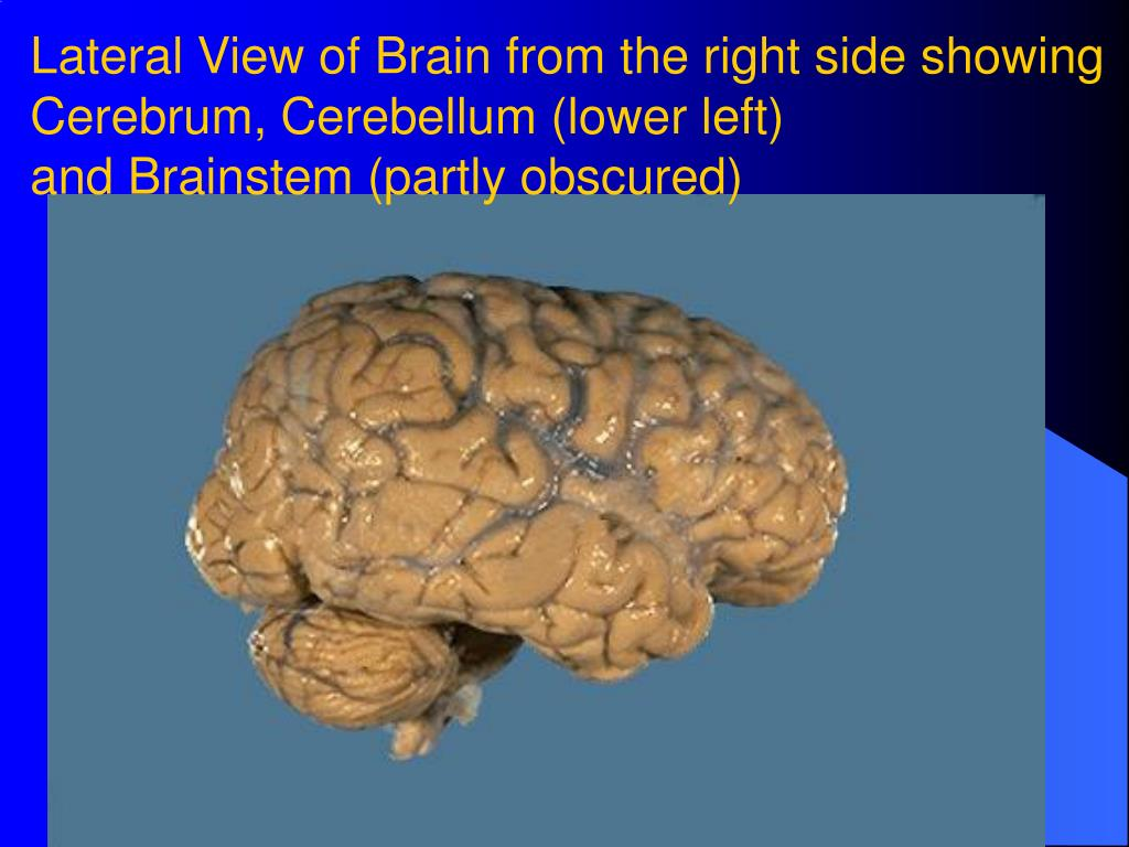 Lateral View of Brain from the right side showing