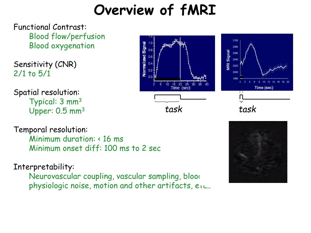 Overview of fMRI