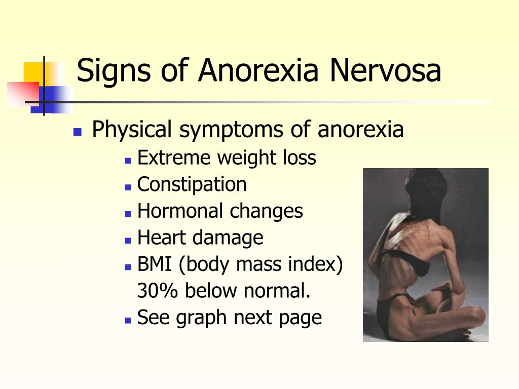 Signs of Anorexia Nervosa