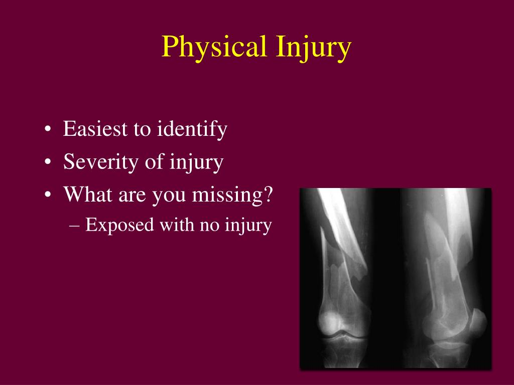 Physical Injury