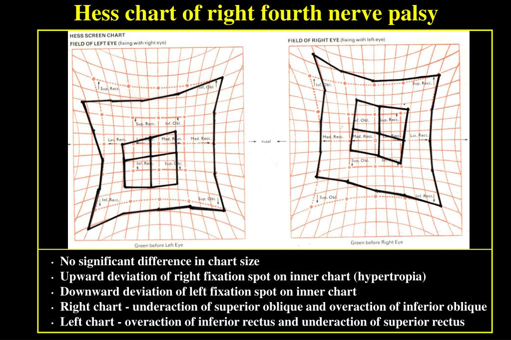 Hess chart of right fourth nerve palsy