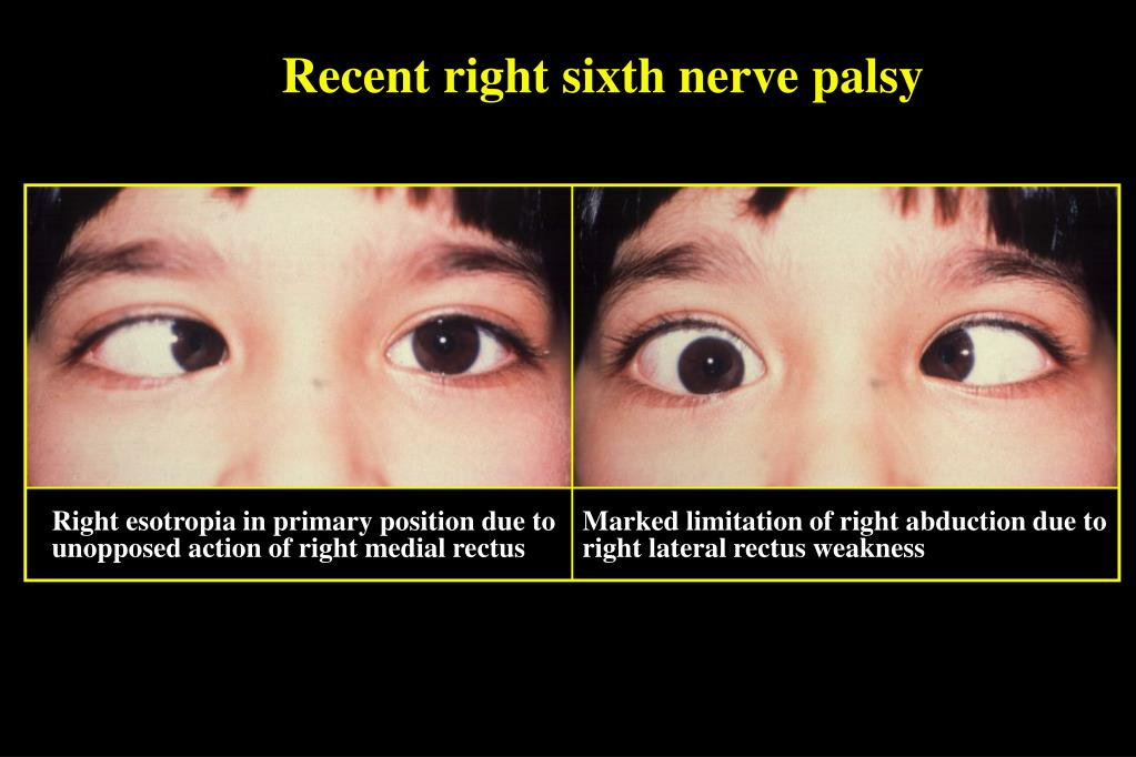 Recent right sixth nerve palsy