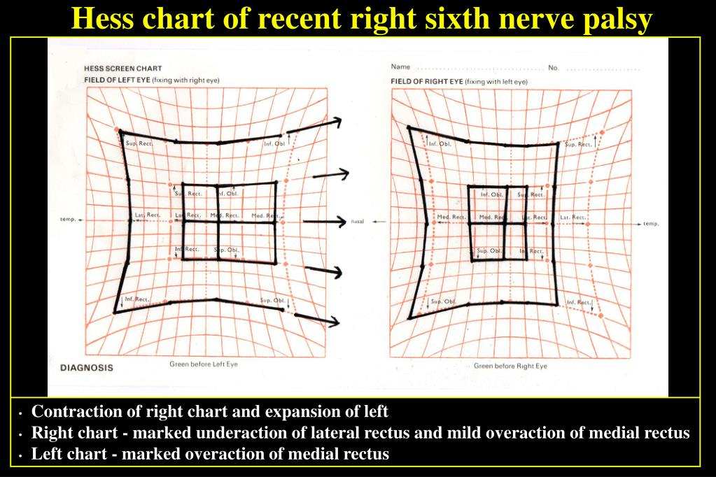 Hess chart of recent right sixth nerve palsy