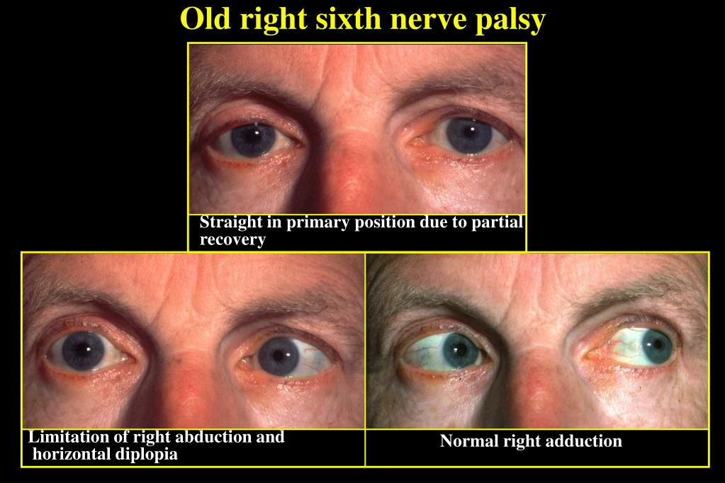 Old right sixth nerve palsy