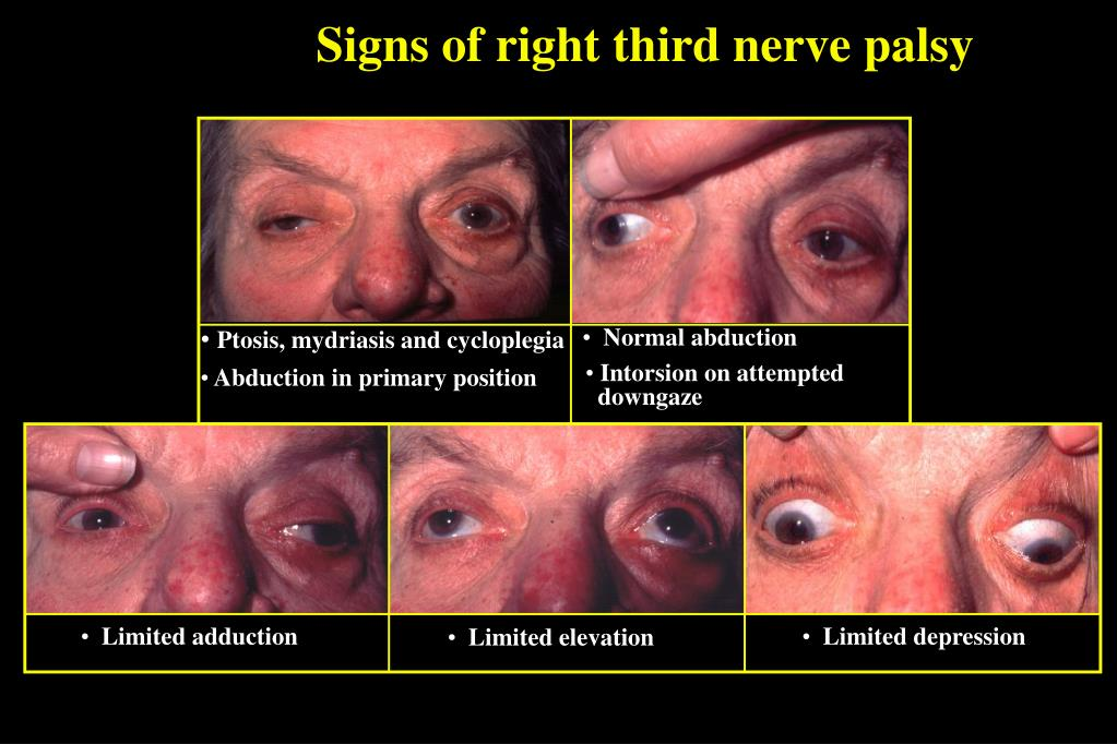 Signs of right third nerve palsy