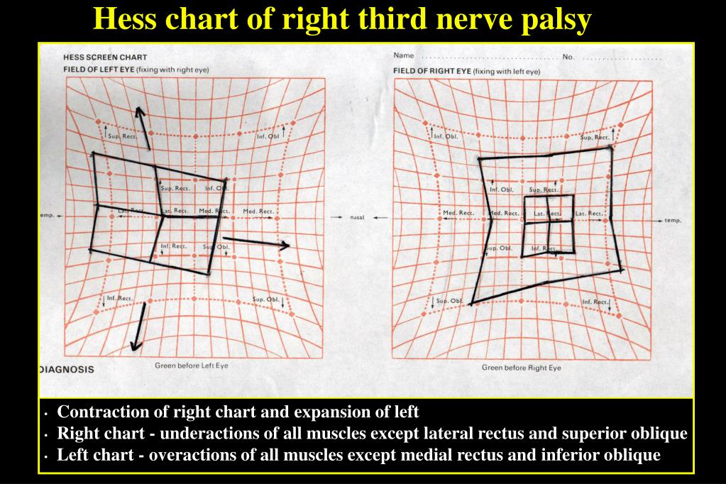 Hess chart of right third nerve palsy