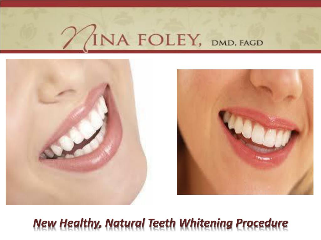 New Healthy, Natural Teeth Whitening Procedure