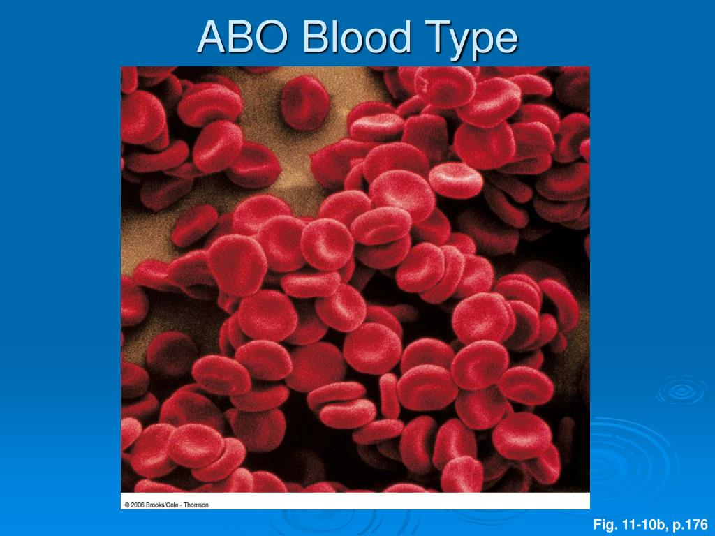 ABO Blood Type