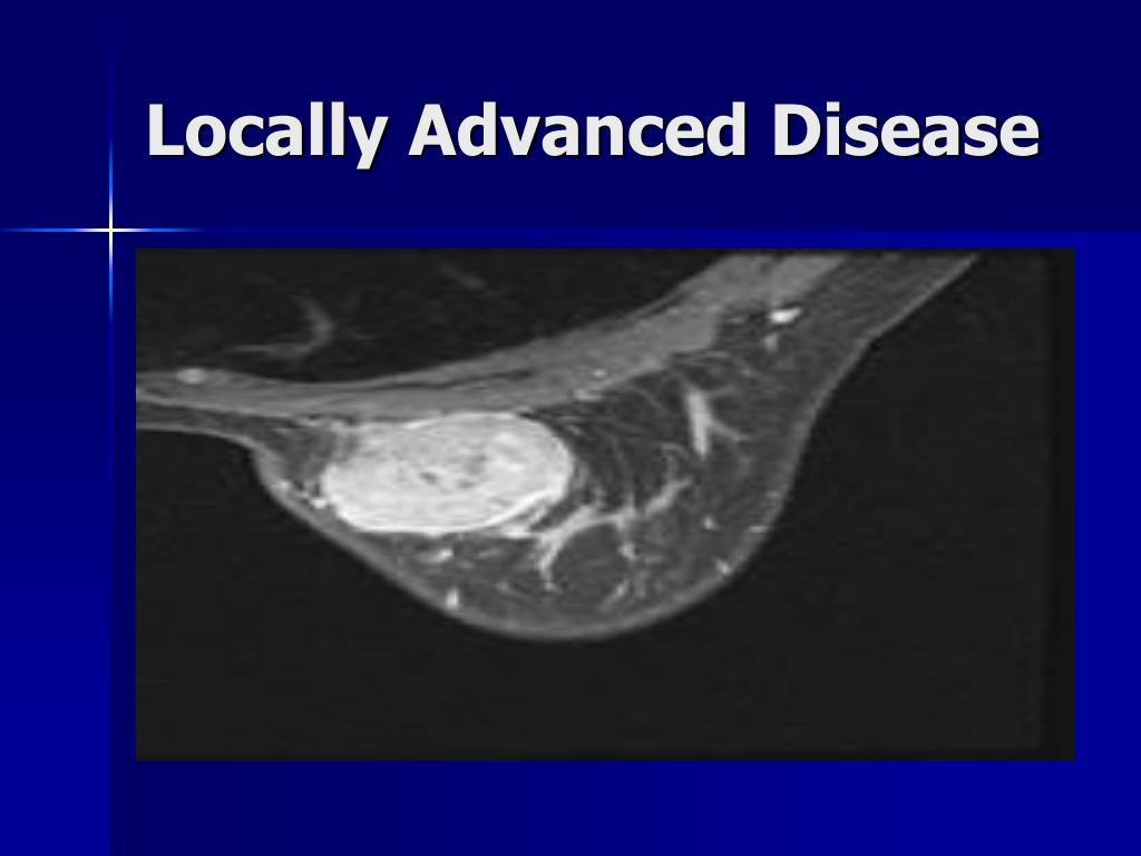 Locally Advanced Disease