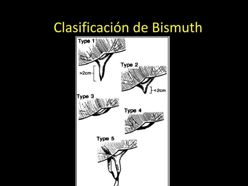Clasificación de Bismuth