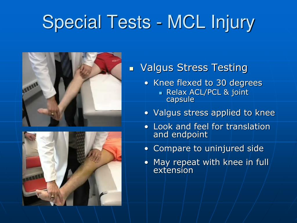 Special Tests - MCL Injury