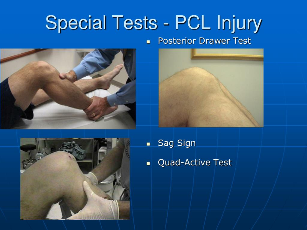 Special Tests - PCL Injury