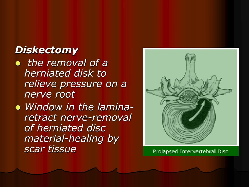 Diskectomy