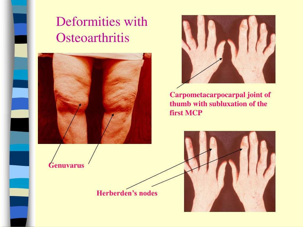 Deformities with Osteoarthritis