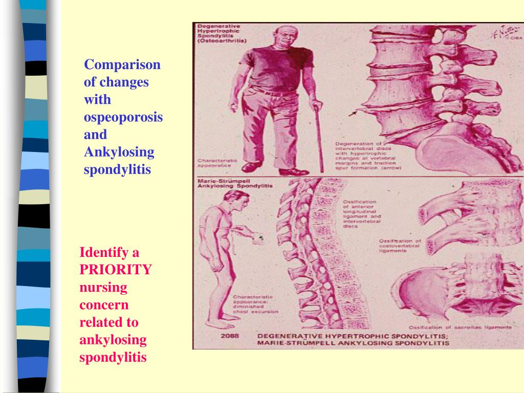 Comparison of changes with ospeoporosis and Ankylosing spondylitis