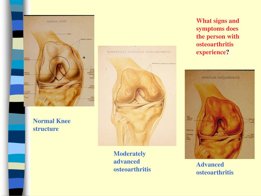 What signs and symptoms does the person with osteoarthritis experience