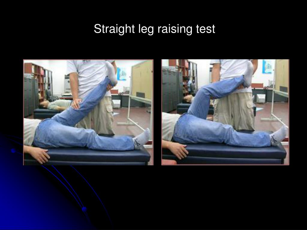 Straight leg raising test