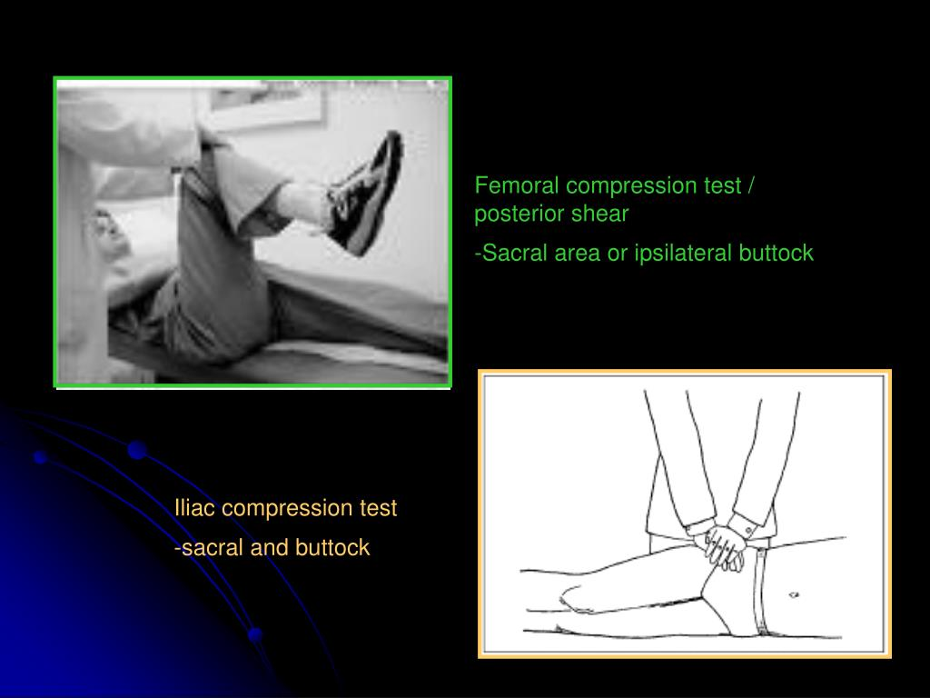 Femoral compression test / posterior shear