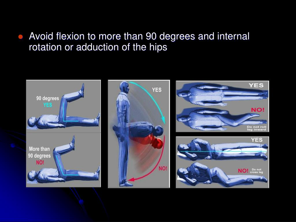 Avoid flexion to more than 90 degrees and internal   rotation or adduction of the hips