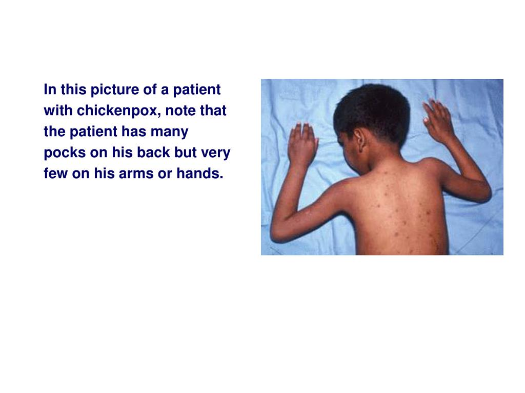 In this picture of a patient with chickenpox, note that the patient has many pocks on his back but very few on his arms or hands.