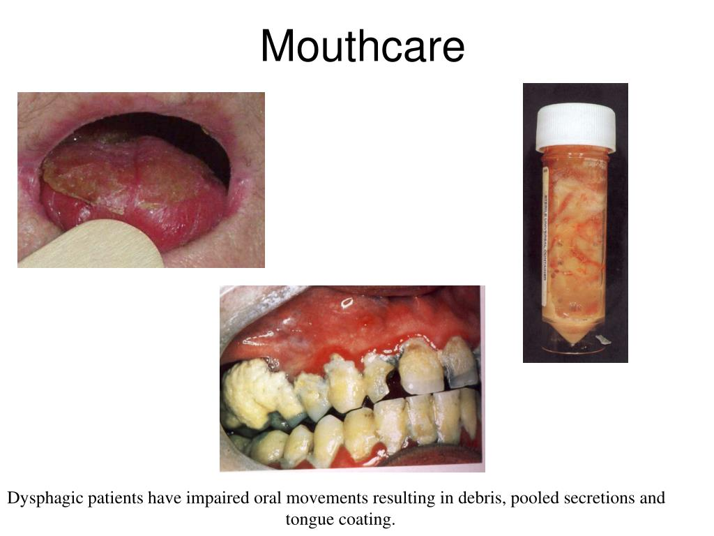 Mouthcare