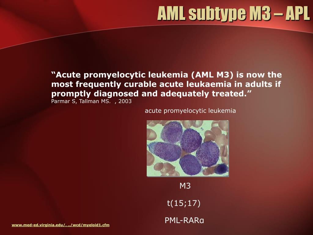 AML subtype M3 – APL