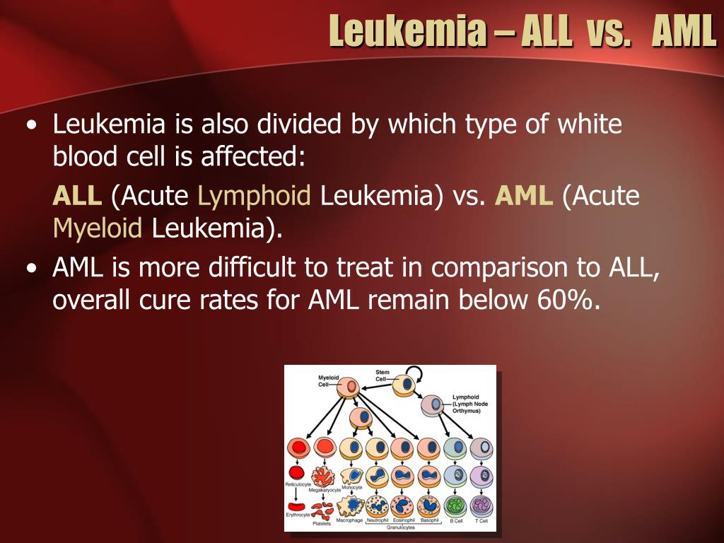 Leukemia – ALL  vs.   AML