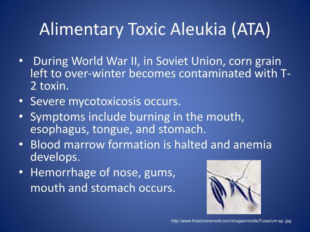 Alimentary Toxic Aleukia (ATA)