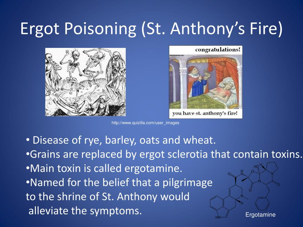Ergot Poisoning (St. Anthony's Fire)