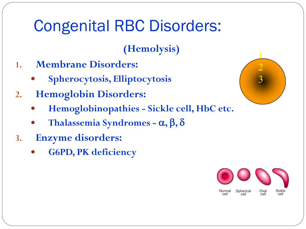 Congenital RBC Disorders: