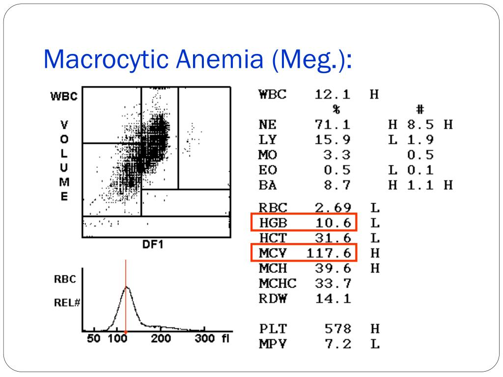 Macrocytic Anemia (Meg.):