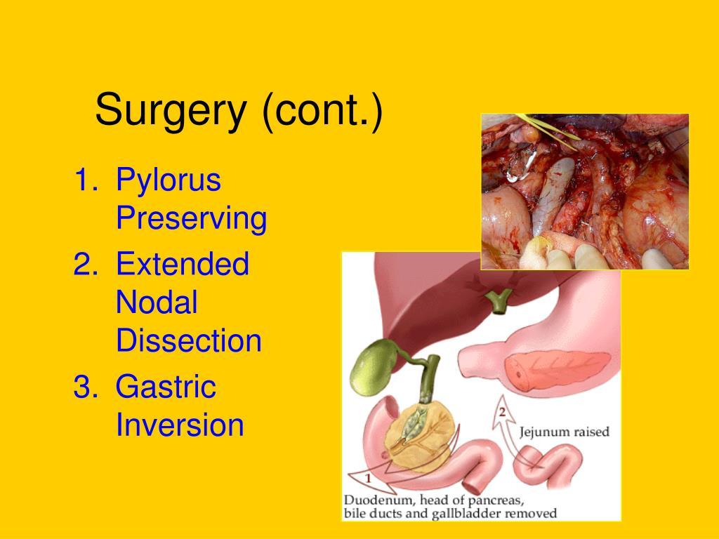 Surgery (cont.)