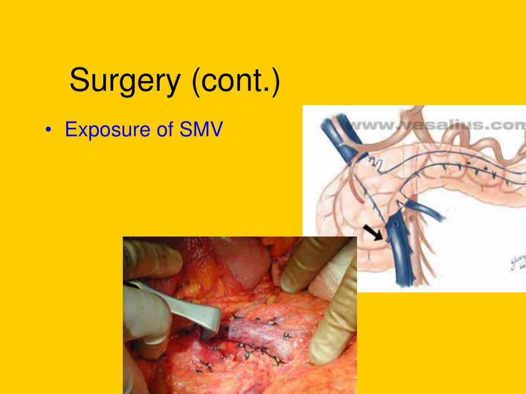Exposure of SMV