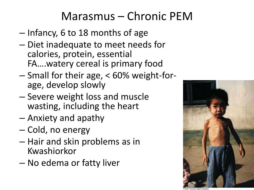 meet marasmus and kwashiorkor