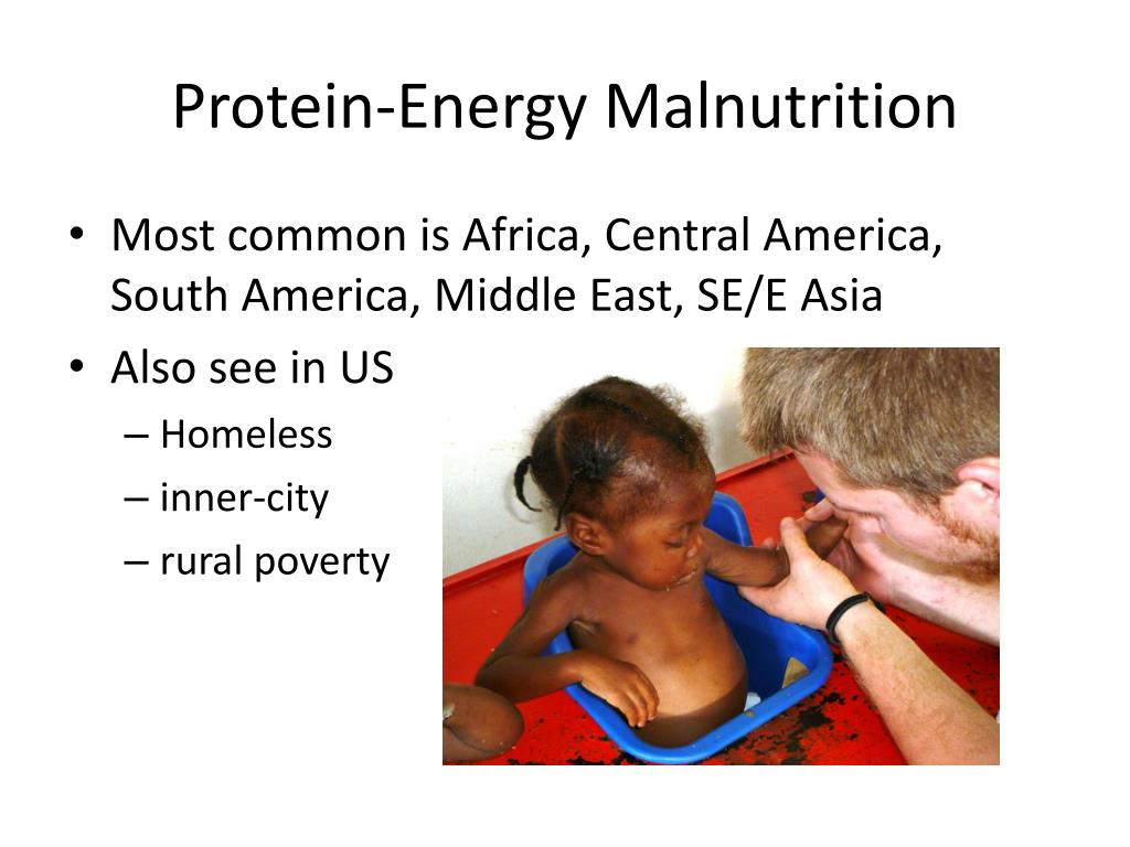 malnutrition and aids the problems of africa The burden of malnutrition among hiv-infected children is not well described in sub-saharan africa, even though it is an important problem to take into account to guarantee appropriate healthcare for these children we assessed the prevalence of malnutrition and its associated factors among hiv-infected.