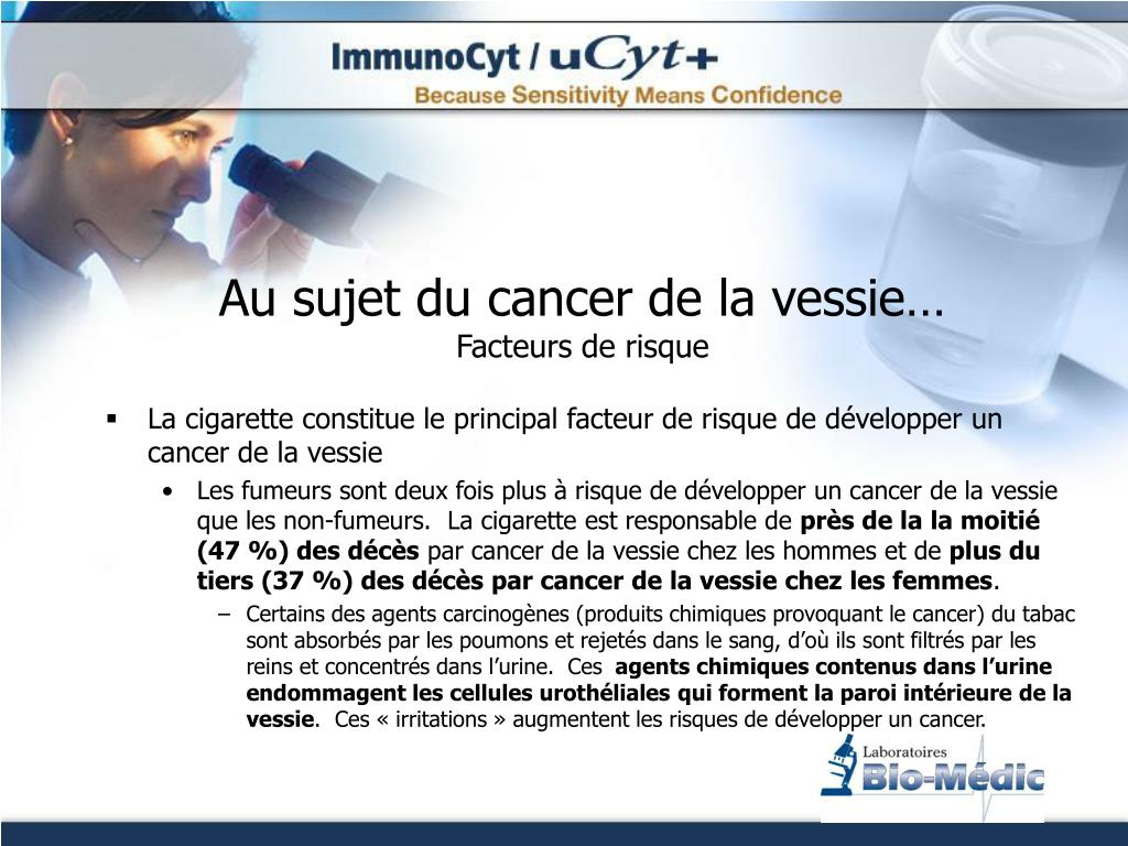 ppt d tection du cancer de la vessie powerpoint presentation id 281900. Black Bedroom Furniture Sets. Home Design Ideas